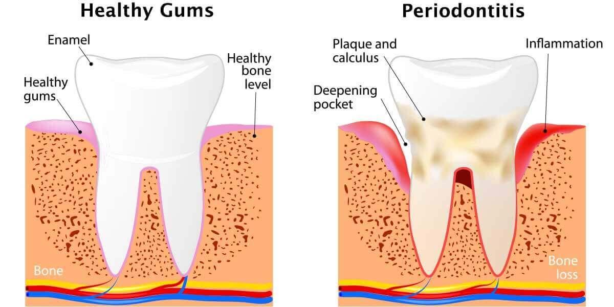 Healthy gums vs periodontitis graphic